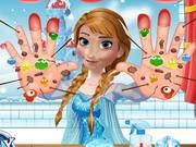 Play Anna Hand Doctor