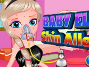 Play Baby Elsa Skin Allergy