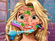 Play Rapunzel Skin Doctor